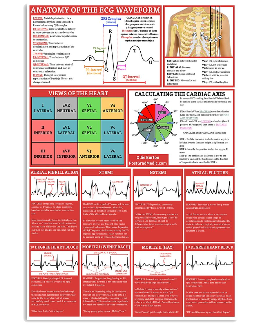 anatomy of the ecg waveform cardiologist poster 1