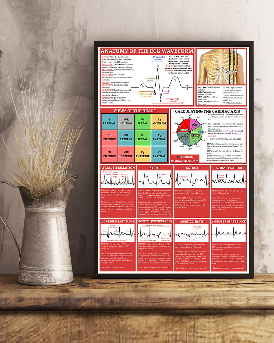 anatomy of the ecg waveform cardiologist poster 3
